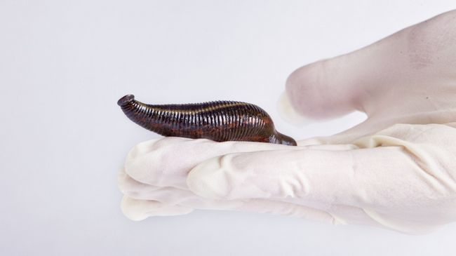 Гірудопластіка