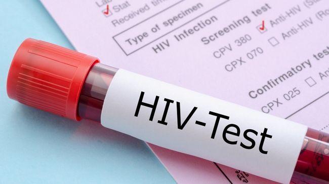 ВІЛ інфекція