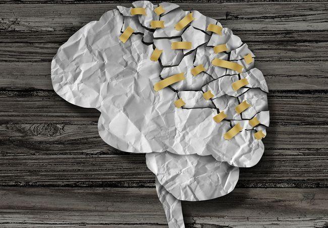 6 Міфів про розсіяному склерозі