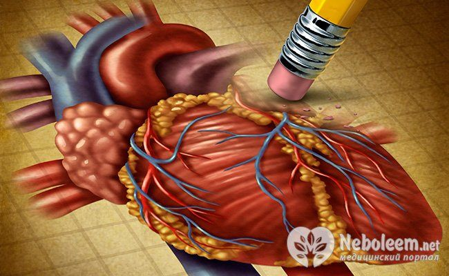 4. Підвищений холестерин