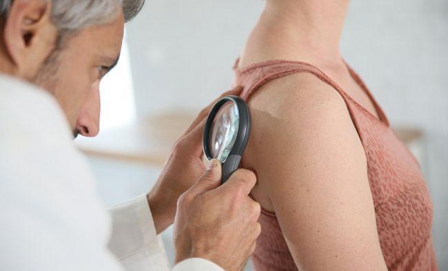 9 Міфів про рак шкіри