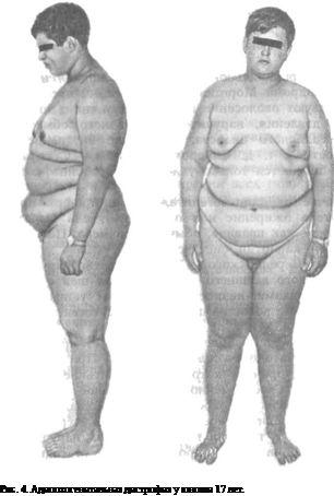адіпозогенітальная дистрофія