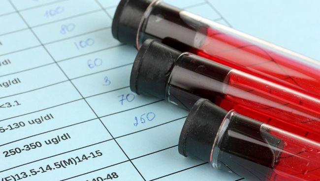 Визначення рівня АКТГ в крові