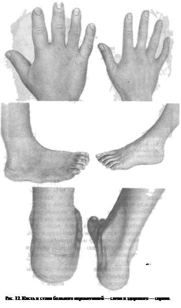 Кисть і стопа хворого акромегалией - зліва і здорового - справа