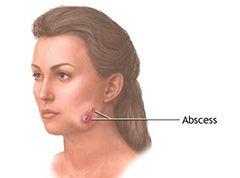 Актімонікоз на обличчі