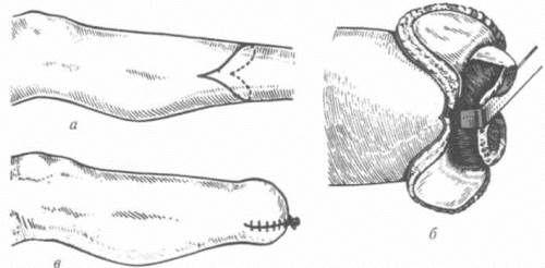 ампутація гомілки