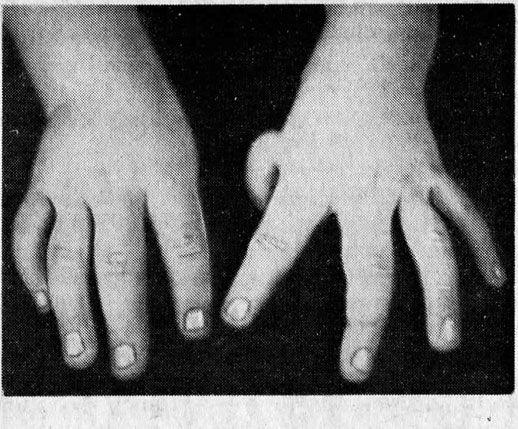 Кисті рук дитини, що страждає конституційною формою апластичної панцитопении