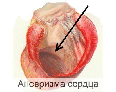 аневризма серця у дітей