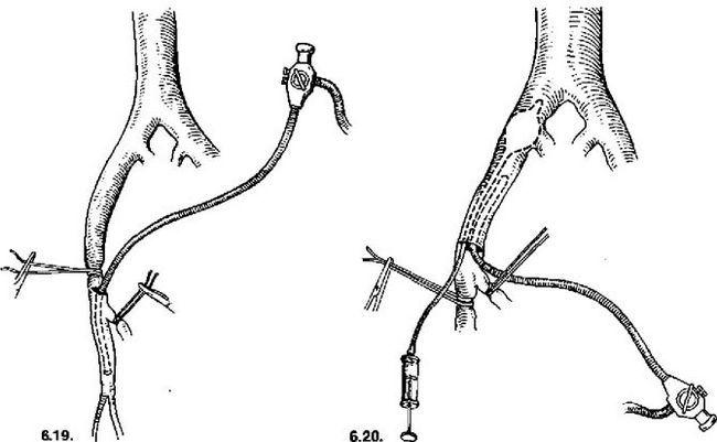інтраопераційна ангіоскопія