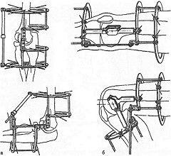 Апарат ілізарова