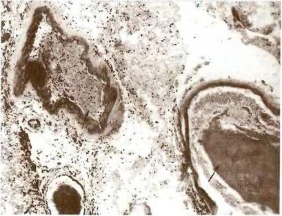 Артеріоартеріальние тромбоемболії