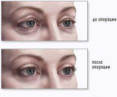 Очі жінки до і після блефаропластики