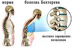 Виразкової хвороби шлунку