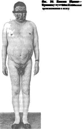 хвороба Іценко - Кушинга