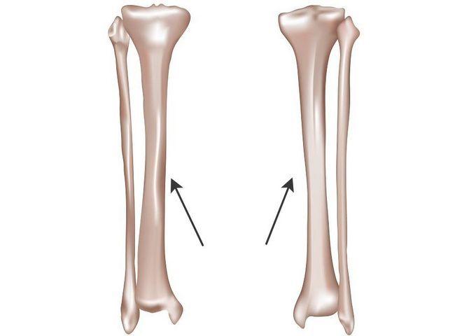 Велика гомілкова кістка