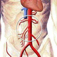 Черевна аорта людини