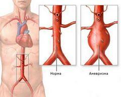 Аневризма черевної аорти