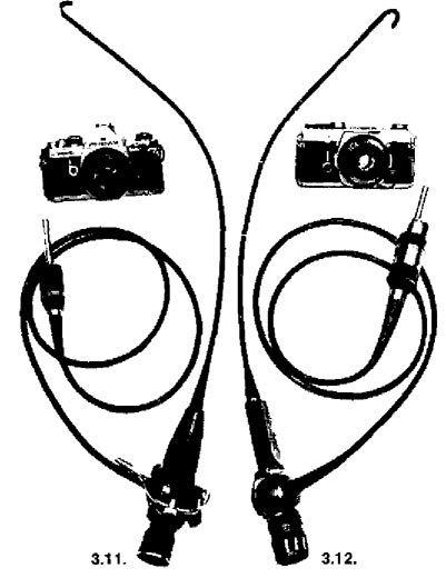 бронхофіброскоп