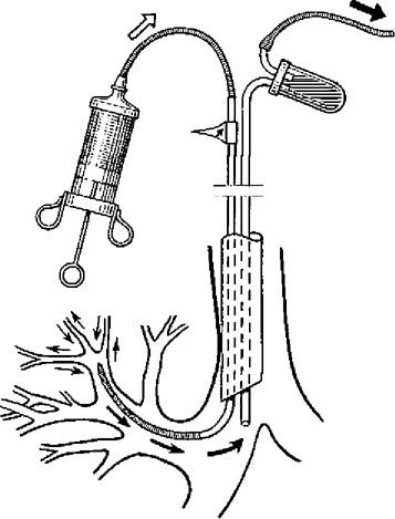 Схема лаважу бронхів при бронхіальній обструкції