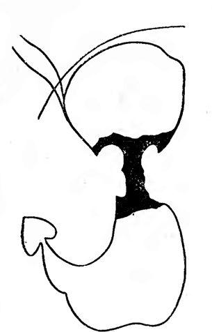Деформація шлунка: циркулярний дефект наповнення тіла