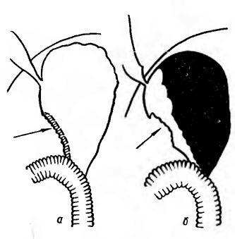 деформація контуру малої кривизни кукси шлунка