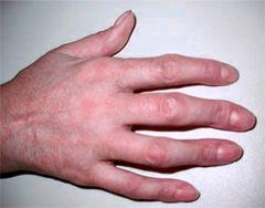 Деформація пальця
