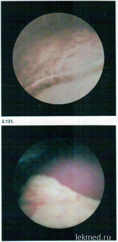 паренхіматозний гепатит