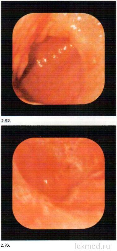 Гастроскопия - ерозії дванадцятипалої кишки