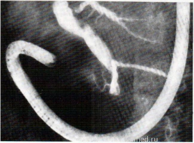 ЕРПХГ, один отвір великого сосочка дванадцятипалої кишки