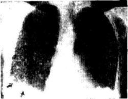 Рентгенограма грудної клітини - плевральнийвипіт