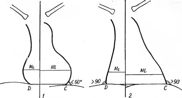 Дилятация міогенна міокарда