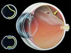 Дистрофія сітківки ока