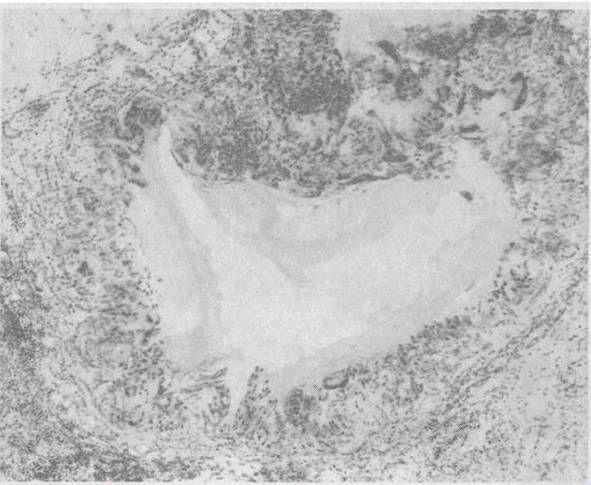 кільцеподібна гранульома