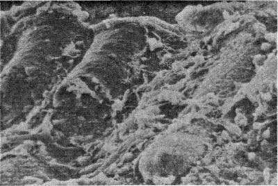 епітелій кишечника