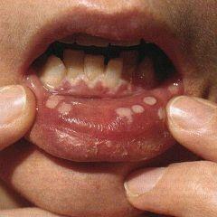 Герпетичний стоматит