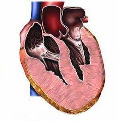 Гіпертрофія правого шлуночка серця