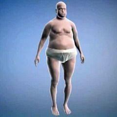 Симптом гипогонадизма у чоловіків - збільшення жирової тканини