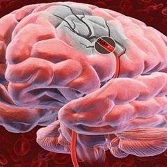 Гіпоксія мозку