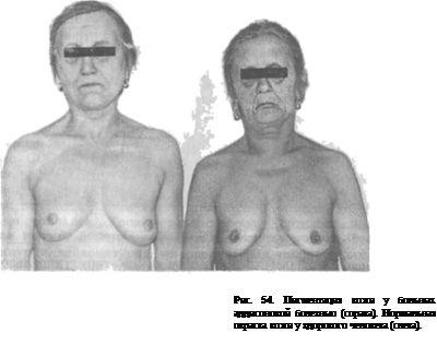 аддисонова хвороба