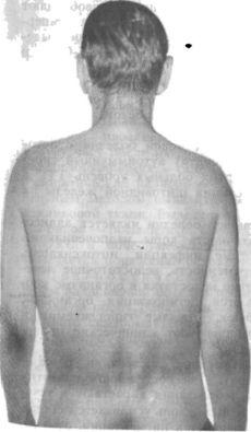 Аддисонова хвороба на спині