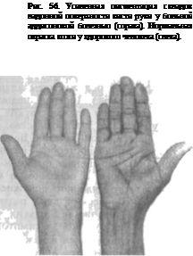 Аддисонова хвороба на руках