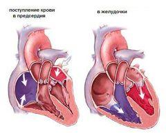 Хронічна серцева недостатність лікування