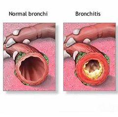Хронічний бронхіт