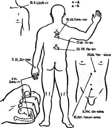 Точки акупунктури, використовувані для зупинки шлункової кровотечі