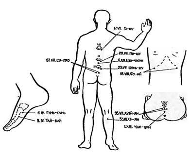 Точки акупунктури, використовувані для зупинки шлункової кровотечі 2