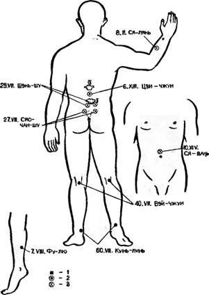 Точки акупунктури, використовувані для зупинки гемороїдального кровотечі і гематурії