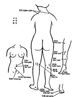 Точки акупунктури, використовувані для зупинки маткових кровотеч