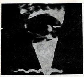 Двомірна ехокардіограма дитини, хворої на бактеріальним ендокардитом