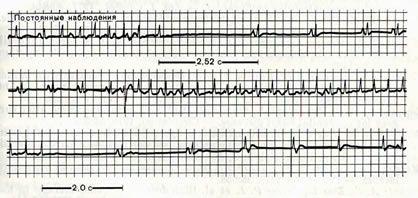 Зміни на електрокардіограмі при синдромі дисфункції синусового вузла