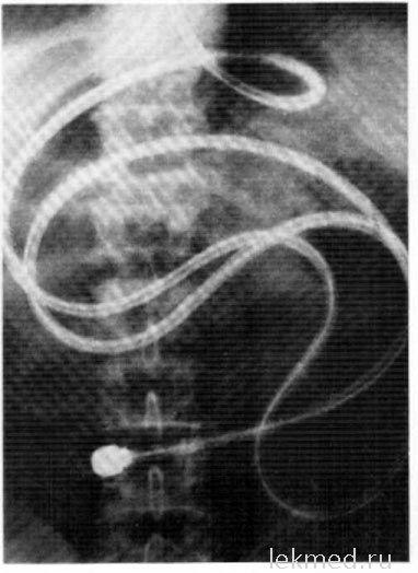 Рентгенограма черевної порожнини під час інтестіноскопи